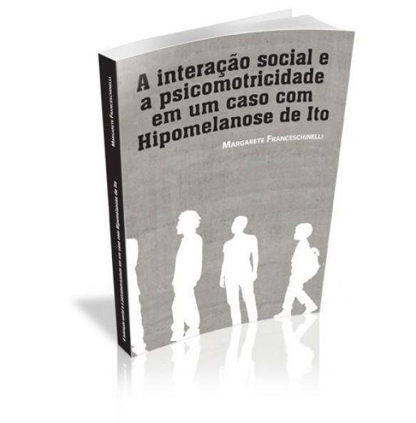 A INTERAÇÃO SOCIAL E A PSICOMOTRICIDADE EM UM CASO COM HIPOMELANOSE DE ITO